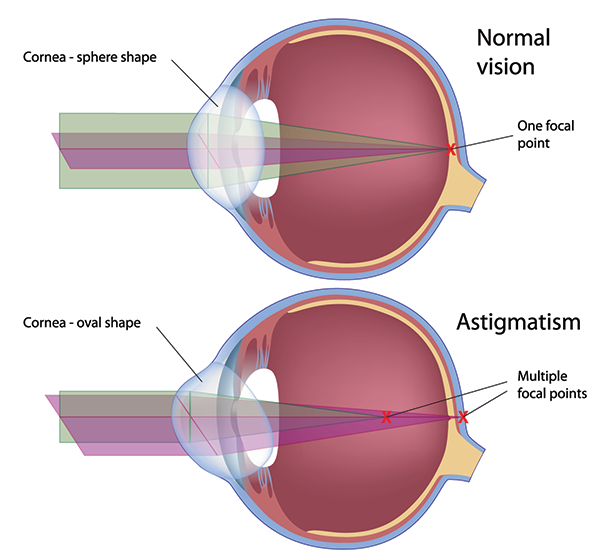 Monmouth County Astigmatism