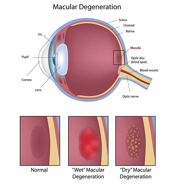 Monmouth County Age-Related Macular Degeneration