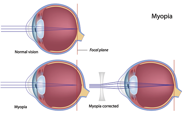 Myopia in Monmouth County