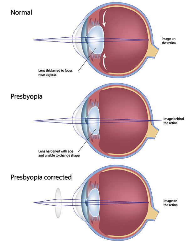 Presbyopia in Monmouth County