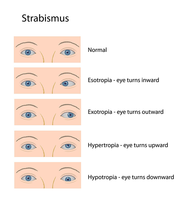 Strabismus in Monmouth County